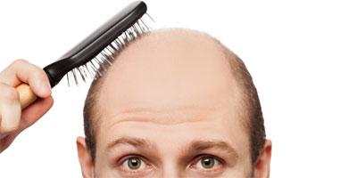 La perdida de cabello en hombres causas y tratamientos