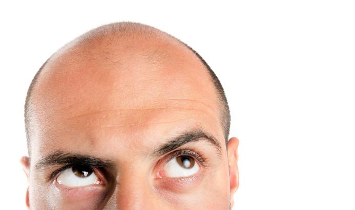 9 pasos para recuperar los foliculos pilosos dañados del cabello