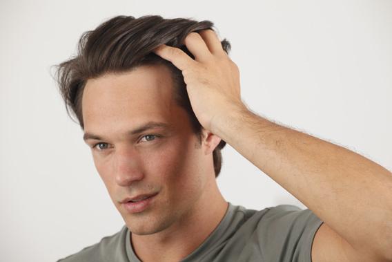 consejos para recuperar los foliculos pilosos dañados del cabello