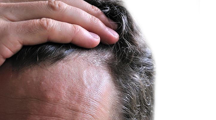 tratamiento para la caspa del cabello