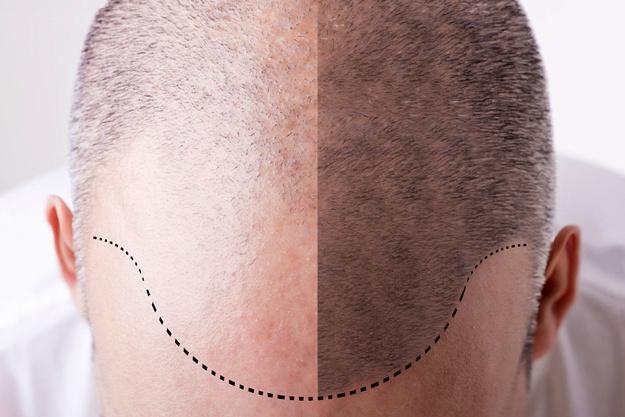 Tratamientos con cirugía de trasplante de cabello